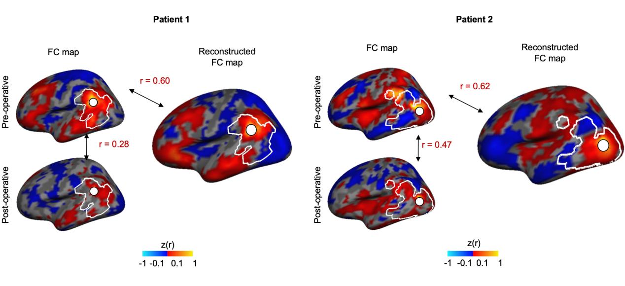 图2  植入脑起搏器的帕金森患者大脑缺损磁共振信号得到准确修复
